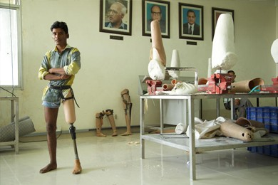 man with artificial knee